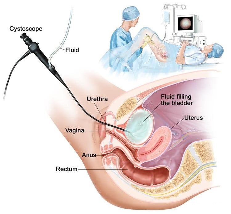 flexible-cystoscopy-in-female
